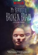 MyBeautifulBrokenBrain-poster